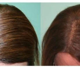 hair surgery for women